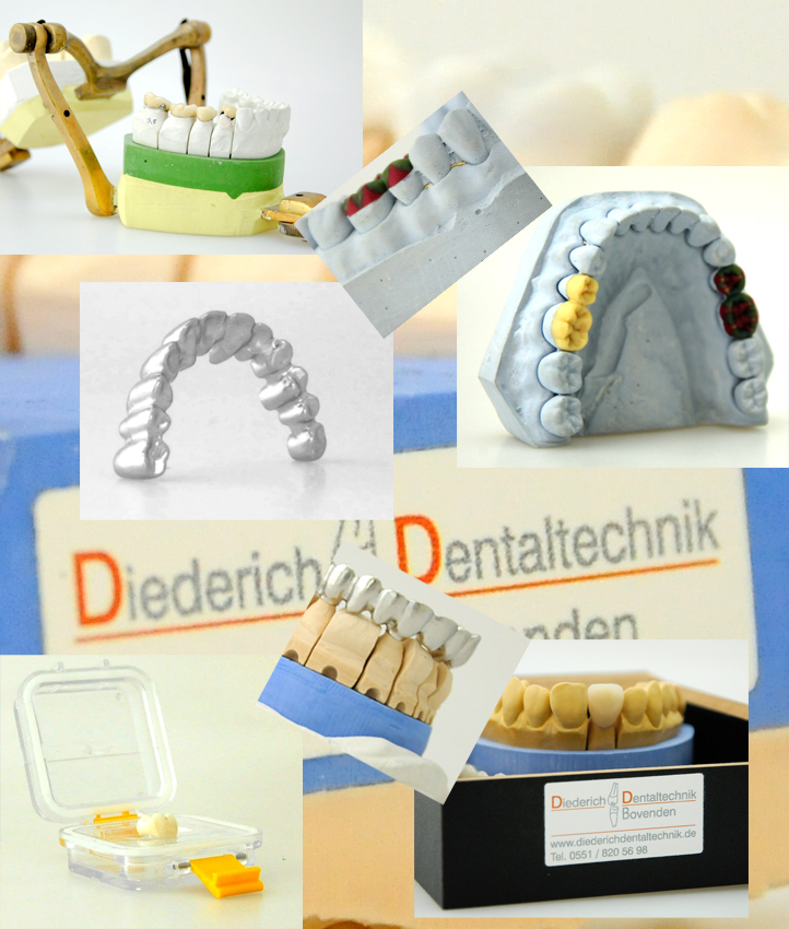 dentaltechnik goettingen
